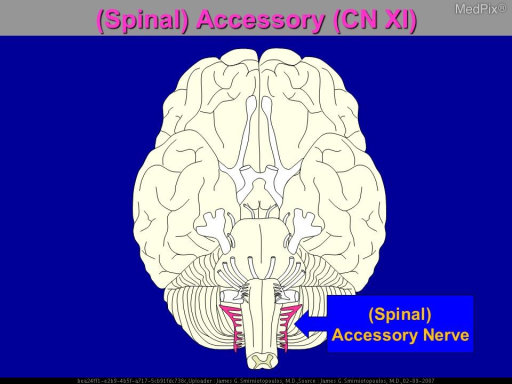 Base view of the brain. The Spinal Accessory nerve (CN-11th)
