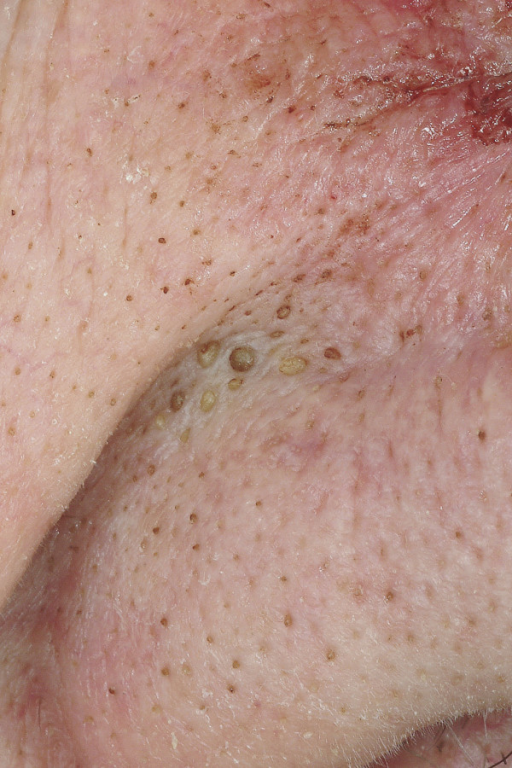 Comedo. Multiple closed comedos at the nasolabial fold and the alar of the nose.