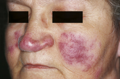 Cutaneous lesions of sarcoidosis (lupus pernio). Red-to-purple indurated plaques and nodules affecting the nose and cheeks.