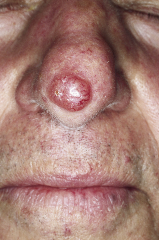 BCC Nodular type. Red, waxy nodule on the tip of the nose. Visible telangiectasias over the surface.