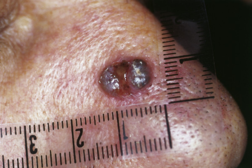 Pigmented BCC. Dark nodule (resulting from melanin deposition) at the alar of the nose. Small ulceration at the center.