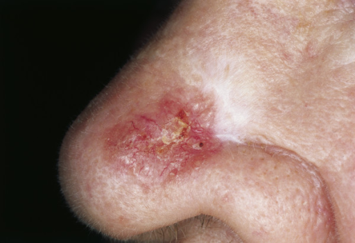 Scar-like morphea-like BCC. Sclerotic, partially reddish plaque. Crusting in the center.
