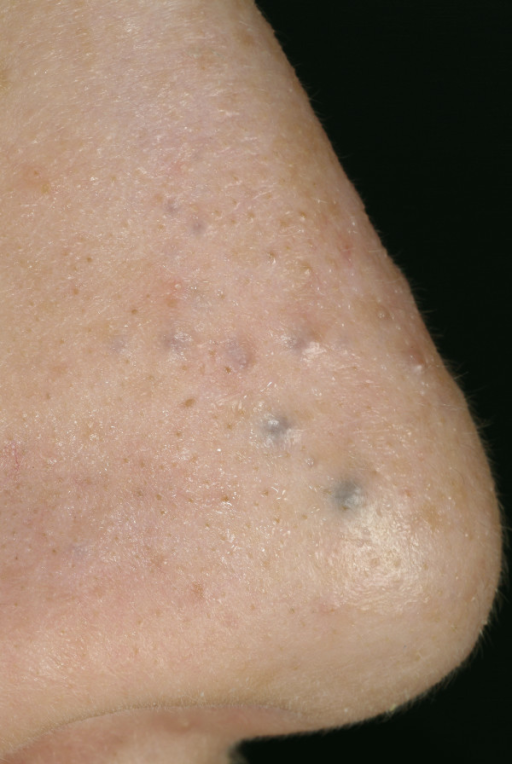 "Eccrine hydrocystoma. Multiple small papules. Some are skin-colored; the larger papules are dark (""hydrocystome noire"")."