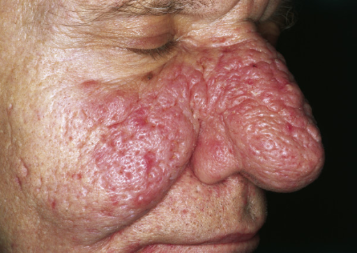 Rhinophyma. Large exophytic, pink, lobulated mass over the nose with superficial vascular dilation. The lesion is spreading to the cheeks; however, it can also be limited to the nose.