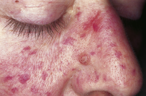 Osler weber rendu disease-2883