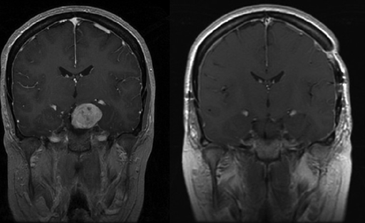 A coronal gadolinium-enhanced contrasted T1-weighted MRI scan showing a large parasellar/ suprasellar mass with significant brainstem compression (a). A postoperative coronal gadolinium-enhanced T1-weighted MRI contrast scan 3 months later showing a complete resection of the mass with brainstem compression reversed (b). A combined subtemporal and anterior Sylvian fissure-splitting approach was used to reach the tumor