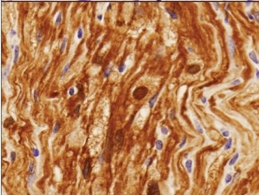 Strong diffuse immunoreactivity for S-100 protein in the schwannoma. S-100 protein immunohistochemistry, ×20