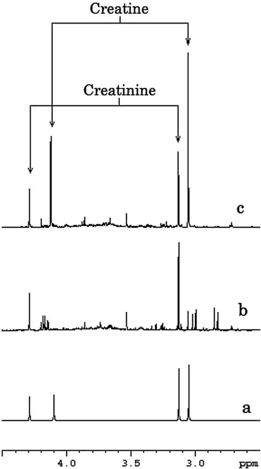 Proton NMR spectra measured at pH 2.50. a: Standard 0.1 M solution of pure substances creatine (3.05 and 4.11 ppm) and creatinine (3.13 and 4.29 ppm). We can clearly see the separation between the signals: a singlet at 3.05 ppm from the methyl of creatine and a singlet at 3.13 ppm from the methyl of creatinine. The two other singlets come from the methylene of creatine (at 4.11 ppm) and creatinine (at 4.29 ppm). b: Urine spectrum of a healthy subject. c: Urine spectrum of a patient affected by creatine transporter defect. The arrows indicate the creatine and creatinine signals.