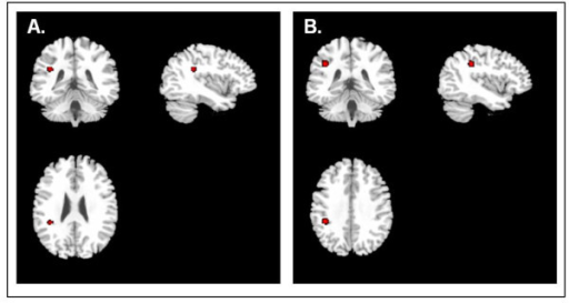 Reduced FA correlates with increased severity and duration of illness. (A) Reduced FA values were seen in the areas highlighted in red in association with increased severity of depression. (B) Reduced FA values were seen in the areas highlighted in red in association with increased duration of illness.
