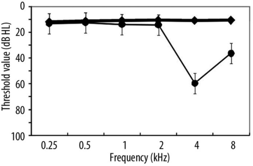 Mean pure-tone hearing thresholds (PTT) averaged across ears of the Normal (bold line) and IH (thin line) groups. Bars represent the standard deviation from the mean. IH ears included in this study showed a 4 kHz notch greater than 30 dB HL using pure-tone audiometry; at this frequency the mean threshold level was 59.6±17.4 dB HL.