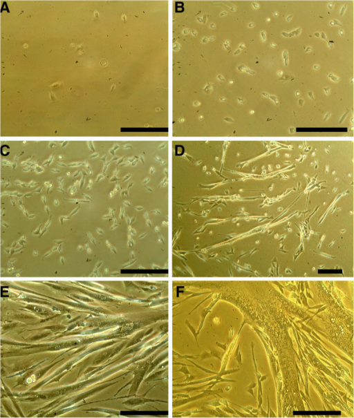 Photomicrographs of different developmental steps of canine muscle cell culture.A, B, C show cells kept under proliferation conditions from 2 to 6 days after harvesting. D, E, F show cells kept under differentiation conditions from 8 to 21 days after harvesting. A: a few small blastoid, circular cells are visible. B and C: typical morphology of proliferating mesenchymal cells. D and E: fusion of cells and formation of myotubes. At this stage spontaneous contraction of the cells can occur. F: finally differentiated multinucleated myotube. (All photomicrographs at 200-fold magnification; except 1D, taken at 100-fold magnification; bar = 100 μm).