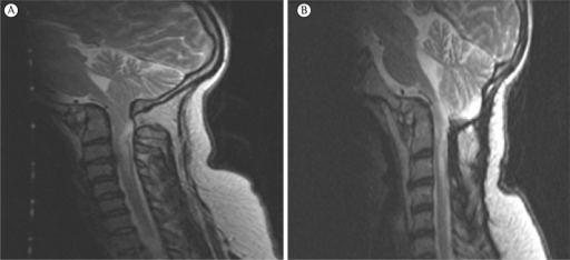In A, presurgical magnetic resonance imaging scan of the brain showing bonymalformation of the craniovertebral junction associated with basilar impressionand a shortened clivus. Low cerebellar tonsils (Chiari malformation type I),but without evidence of syringomyelia. In B, postsurgical magnetic resonanceimaging scan of the brain (T2) showing bony malformation of the craniovertebraljunction associated with syringomyelia at the level of C2 and C3.