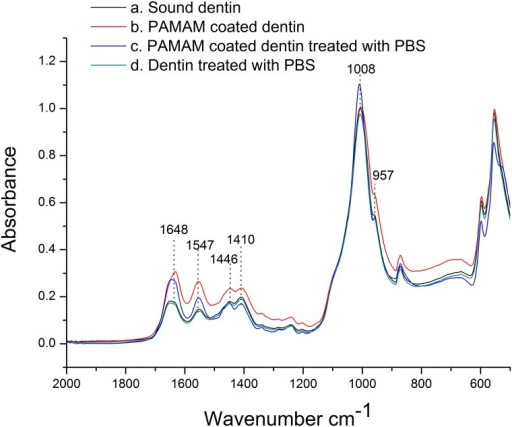 Infrared spectra (2,000–500 cm-1) of PAMAM coated dentin discs.(a) Sound dentin (black line). (b) Dentin disc coated with pure G3.0 PAMAM dendrimers for 30s (red line). (c) Dentin disc immersed in pH 5.8 PBS for 2h after it was coated with G3.0 PAMAM dendrimers (blue line). (d) Untreated dentin disc immersed in pH5.8 PBS for 2h (green line).