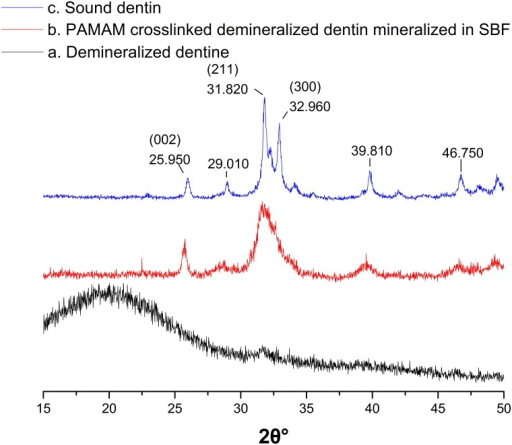 XRD spectra of EDTA demineralized dentin discs crosslinked with PAMAM dendrimers.(a) Neutral EDTA demineralized dentin (black line). (b) PAMAM dendrimers crosslinked demineralized dentin mineralized in SBF for 1w (red line). (c) Sound dentin (blue line).
