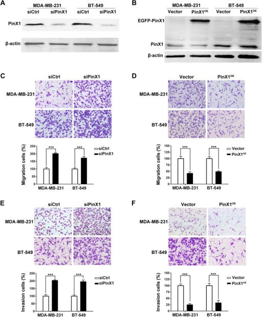 PinX1 inhibits migration and invasion of human breast cancer cells. (A) Western blot analysis of the relative protein level of PinX1 in PinX1 knockdown (siPinX1) and control siRNA (siCtrl) groups for both MDA-MB-231 and BT-549 cell lines. (B) Western blot analysis of the relative protein level of PinX1 in PinX1 overexpression (PinX1OE) and control vector (Vector) groups for both MDA-MB-231 and BT-549 cell lines. (C) and (E) PinX1 knockdown significantly inhibited migration and invasion abilities of MDA-MB-231 and BT-549 cells. (D) and (F) PinX1 overexpression significantly inhibited migration and invasion abilities of MDA-MB-231 and BT-549 cells. All experiments were carried out in triplicate. Data are shown as means ± SD. ***, P < 0.001.