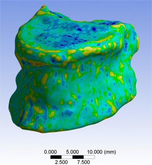 MDCT-based FEM of a representative vertebral body. The BMD distribution is color-coded and used for the assignment of the material properties for each element of the FEM