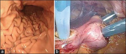 Intraoperative gastroscopy. The gastric wall has closed, and the stent cannot be localized (a). Three Applied KII® 5 mm trocars in the stomach (b)