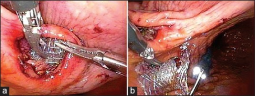Blunt dissection near the omental bursa after incision and retrieval of the stent (a). Removal of the stent with the aid of an endoscope (b)