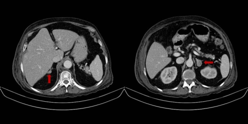 Abdominal tomography. Right adrenal nodule 14x9 mm and left adrenal gland nodule 23x18 mm.
