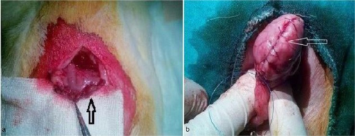 (a) Sleeve gastrectomy. The arrow shows the gastrectomy line. (b) Gastric plication. The arrow shows the plication line.