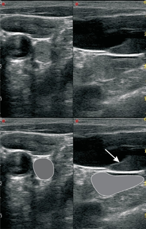 A cross-sectional (on the left) and a longitudinal (on the right) ultrasound of the region at the left base of the neck. A longitudinal, hypoechoic focal lesion (marked in grey in the lower images), which can be confused with an abnormal lymph node or other solid lesion (e.g. an enlarged thyroid gland) is visualized laterally to the common carotid artery and below the internal jugular vein. This corresponds to the branch of the internal jugular vein with erythrocyte rouleaux (visible segmentallys). Minor rouleaux can be also seen in the longitudinal view – in the internal jugular vein below the valve (arrow).