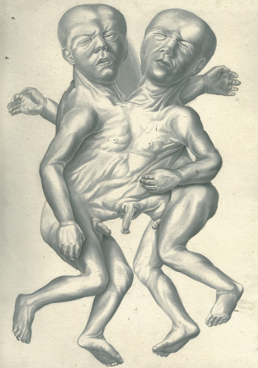 <p>Double-headed conjoined twins.</p>