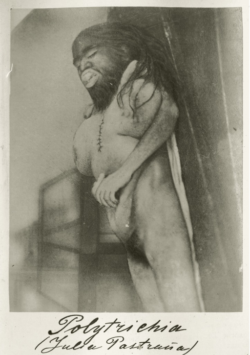 <p>Image of the corpse of Julia Pastrana. Pastrana died in childbirth while in Moscow in 1860. Anatomy professor Ivan M. Sokolov performed the autopsy and embalmed her body. Apparently a colleague alerted Mansurov to the autopsy photographs preserved at the Anatomy Institute of Moscow University Medical School, and he included it in a follow-up article on differences between &quot;acquired&quot; and &quot;hereditary&quot; polytrichia. Clinical Collection 2 [1887], facing pp. 24 and 40.</p>