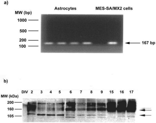 MDR1mRNA and P-gp expression in astroglial cultures. a/ RT-PCR showing MDR1mRNA. b/ Western blotting using rabbit anti-P-gp polyclonal antibody demonstrating the presence of P-gp as early as 2 div. Between 2 div and 5 div, a band is observed at about 120 kDa (lower black arrow); a doublet appears at 6 div at about 150–170 kDa (black arrows); the band corresponding to the mature form of P-gp, is expected at 170 kDa (grey arrow), and becomes increased after 15 div.