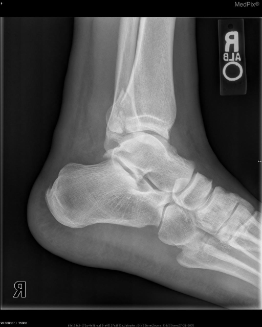 Lateral ankle demonstrates minimally-displaced fracture of posterior, distal tibia.