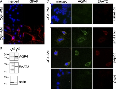 CG-4 glial cells in astrocytic differentiation medium up-regulate both AQP4 and EAAT2 expression; NMO serum down-regulates both. (A) CG-4 cells cultured in proliferation medium (CG4-PM) do not express cytoplasmic GFAP (red). After 7 d in astrocytic differentiation medium (CG4-AM), a subset of cells contains brilliant cytoplasmic GFAP. (B) The Western blot shows that undifferentiated CG4-PM (PM) cell lysates contain minimal EAAT2 or AQP4; both proteins are up-regulated in CG4-AM (AM). Markers indicate kilodalton reference standards. (C) AQP4 (green) and EAAT2 (red) are negligible in CG4-PM cells, but are up-regulated on the surface of CG4-AM cells; NMO serum, but not control patient serum, depletes both. DNA is blue (A and C). All experiments were performed a minimum of two times. Bars, 5 μm.