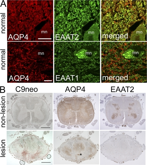 Glutamate transporter expression in human tissue. (A) Normal spinal cord from a single subject. Duplicate sections were dual stained for AQP4 (red) and EAAT2 or EAAT1 (green), i.e., four sections. Merged images show AQP4 and EAAT2 colocalization (top, yellow), but no colocalization of AQP4 and EAAT1 (bottom); mn, motor neuron. (B) Spinal cord tissue from a single NMO-IgG–seropositive patient. Three sections of nonlesioned lumbar region (top) serve as staining control for lesioned cord (bottom). The lack of complement deposition (C9neo, brick red in lesioned cord, bottom) and high expression of AQP4 in both white and gray matter are typical of normal cord tissue; EAAT2 is highly enriched in gray matter. Prominent deposition of C9neo in gray matter of lesioned thoracic cord (bottom, same patient) corresponds to focal regions of AQP4 and EAAT2 loss in adjacent sections. AQP4 is partially retained in the white matter. Asterisk, central canal. Bars: (A) 20 μm; (B) 200 μm.