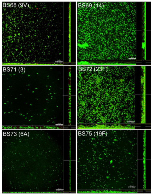 CLSM images of biofilm development by clinical isolates of S. pneumoniae stained with BacLight after 6 days of culture showing viable (green fluorescence) and nonviable (red fluorescence) pneumococci within the biofilms. Images are maximum projections or reconstructed confocal stacks consisting of a series of x-y sections. Sideviews (YZ – left and XZ – bottom) are saggital sections of the biofilm. Scale bar = 30 μm.