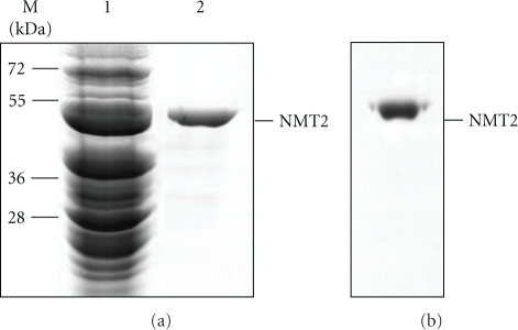 SDS-PAGE and Western blot analysis of bovine brain NMT2. Thirty microgram of proteins was loaded onto (a) SDS-PAGE; lane 1, crude cell lysate; lane 2, purified E. coli  expressed bovine brain NMT2. (b) Purified E. coli  expressed bovine brain NMT2 (thirty microgram) immunoblotted with monoclonal anti-NMT2 (1 : 1000 dilution) as described in Section 2.