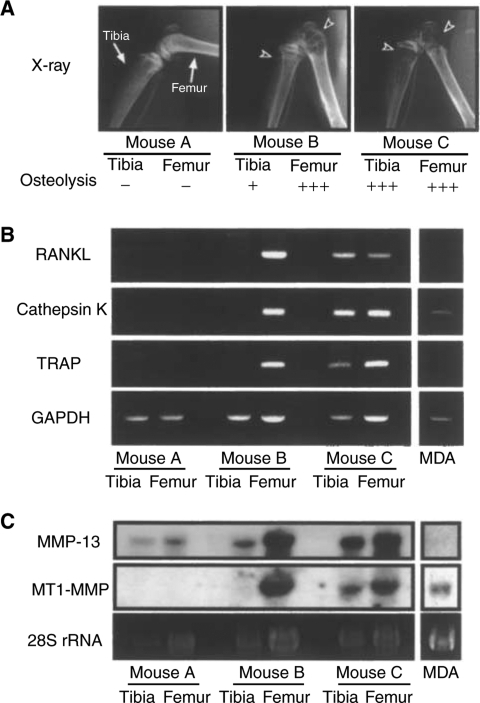 Expression of RANKL, cathepsin K, TRAP, MMP-13 and MT1-MMP mRNA in bone with metastasis of MDA-231 breast cancer. (A) Nude mice were injected with or without MDA-231 cells and the hindlimbs were subjected to soft X-ray analyses. Arrowheads indicate the osteolytic lesions because of metastasis in the femur and tibia. Mouse A is control mouse without injection of MDA-231 cells. Mouse B possesses slight metastasis in the tibia and severe metastasis in the femur. Mouse C possesses severe metastasis in both the femur and tibia. (B) Total RNA was collected from the femur and tibia shown in panel A, and mRNA expression of RANKL, cathepsin K and TRAP was analysed by RT–PCR. (C) Expression of MMP-13 and MT1-MMP mRNAs was analysed by Northern blotting using total RNA used in panel B. Note that marked expression of RANKL, cathepsin K, TRAP, MMP-13 and MT1-MMP mRNAs was detected only in bone with severe osteolysis because of bone metastasis.