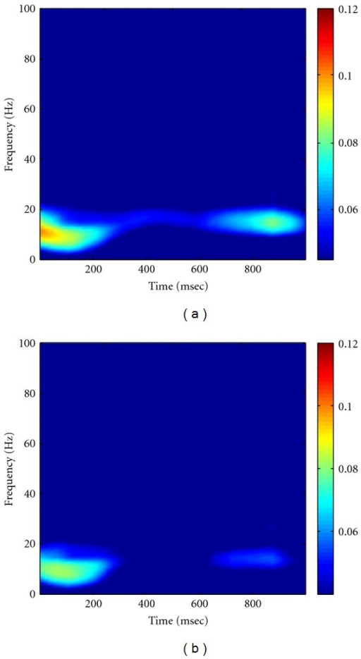 Grand average of the smoothed NAIC spectra in Visible (a) and Invisible (b) conditions. In comparison of (a) with (b), we can see that Visible condition exhibits larger coherence than Invisible condition at round 400 msec after surrounding onset.