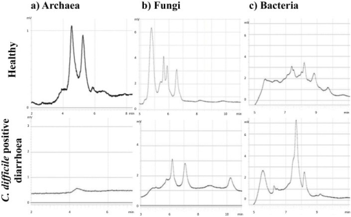 Representative DHPLC profiles of faecal microbiota.The profiles show archaeal (a), fungal (b) and bacterial (c) faecal microbiota. The faecal profiles of healthy volunteers are in the upper row and the profiles from the diarrhoeal patients colonised by Clostridium difficile 027 ribotypes are in the lower row. The selected profiles show typical chromatograms of the three studied microbial groups. The chromatograms show increasing complexities from archaeal to fungal and bacterial microbiota, respectively.