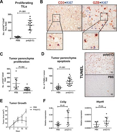 The effect of toll-like receptor 3 (TLR3) activation on antitumor activity in vivo. A) The mean number of Ki67+CD45+ proliferating tumor-infiltrating leukocytes per field was assessed by immunohistochemistry in liver tumors from poly(I:C)-treated mice compared with phosphate buffered saline (PBS)-treated mice. Whisker bars indicate the SD. An unpaired t-test was used to calculate the two-sided P-value. B) Representative immunohistochemical images of CD3 or granzyme-B (GZB) staining (red) and Ki67 (blue) at ×400 magnification. Membrane expression of CD3, cytoplasmic expression of GZB, and nuclear expression of Ki-67 were observed. The insets show a representative magnified area. Scale bar = 30 µm. C) The mean number of Ki67+CD45- proliferating tumor parenchyma cells per field in liver tumors harvested from poly(I:C)-treated mice compared with PBS-treated mice is shown. Whisker bars indicate the SD. The Mann–Whitney test was used to calculate the two-sided P-value. D) The mean number of apoptotic tumor parenchyma cells per field detected by terminal deoxynucleotidyl transferase dUTP nick end labeling in liver tumors harvested from poly(I:C)-treated or PBS-treated mice is shown. Whisker bars indicate the SD. The Mann–Whitney test was used to calculate the two-sided P-value. Representative immunohistochemical images are also shown at ×200 magnification. Scale bar = 50 µm. E) Transplanted tumor growth was determined in mice treated with poly(I:C) vs PBS (n = 6 mice per group). On day 14, the mean tumor area of poly(I:C)- vs PBS-treated mice is 14.5 vs 39.5mm2, P < .001. Whisker bars indicate the SD. A two-way analysis of variance test with Bonferroni correction was used to calculate the two-sided P-value. F) Relative gene expression of T (threefold increase in Cd3g) and NK (twofold increase in Nkp46) cell markers in transplanted tumors treated with poly(I:C) vs PBS (n = 6 mice per group) is shown. The graphs show the means and SD (whisker bars). An unpaired t-test was used to calculate the two-sided P-values.
