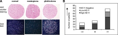 HEY1 is specifically expressed in glioblastoma. (A) Representative images of HEY1 expression as detected by in situ hybridization-tissue microarray (ISH-TMA); in each pair, the bright field haematoxylin and eosin counterstaining for morphologic evaluation (upper panel, 100× magnification) and the concomitant dark field HEY1 ISH signal (silver grains, lower panel) are shown. Transcripts appear as bright dots; the signal observed in normal brain is considered to be background staining. (B) Summary of HEY1 expression on glioma specific TMAs as determined by in situ hybridization; the number of HEY1 positive tumours is shown in relationship to tumour grade.