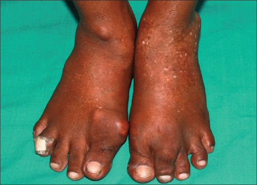 First toe of the right foot and second toe of the left foot show tophi. Skin on dorsa shows mottled hypopigmentation