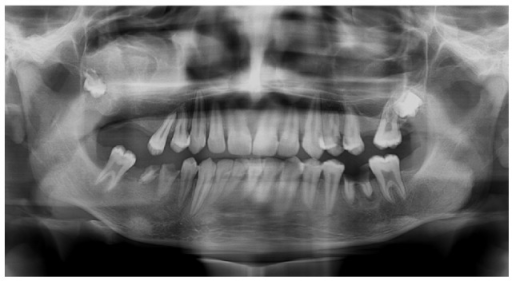 Postoperative radiograph showing signs of calcification in maxilla and condyle.