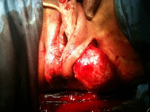 Exeresis of the left perineal myoma.