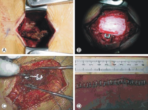 Intraoperative photographs of screw fixation via paraspinal muscle sparing approach. (A) Through a midline skin incision, the spinal processes, laminae, and facet joints were exposed. (B) Following decompression and discectomy, two titanium cages are inserted into the intervertebral space. (C) Paramedian fascial incision are made in 2-3 cm lateral to midline and screws are inserted via the paraspinal muscle sparing approach between longissimus and multifidus muscle. (D) Postoperative skin incision shows single midline incision.
