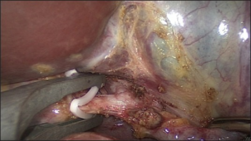 Ligation of cystic duct and artery.