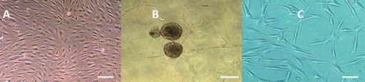 Phase contrast image of (A) stem cells derived from human adipose tissue, (B) neurospheres formation, (C) differentiated cells derived from human adipose derived stem cells 14 days after neural induction in untreated cell cultures. It shows bipolar and multipolar cells with elongated processes, Scale bars denote in A= 150 µm, B= 200 µm and in C= 100 µm