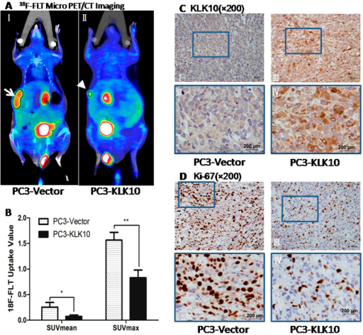 18F-FLT Micro PET/CT scan confirmed a low proliferation metabolism in the KLK10-expressing stable PC3 tumour, which is consistent with the low expression of the Ki-67 protein.(A: I, II) 18F-FLT micro PET/CT scan showed that the 18F-FLT uptake of the subcutaneous transplanted tumour was lower in the PC3-KLK10 group (arrow head) than in the Vector group (arrow); in the images, hot spots of 18F-FLT can also be found in the digestive and urinary systems, and the background was clean without the interference of other abnormal hot spots. (B) Bar chart of 18F-FLT uptake semi-analysis showed that the 18F-FLT uptake of the PC3-KLK10 tumour, measured as SUVmean and SUVmax, was significantly lower than that of the PC3-Vector tumour (0.07 ± 0.03 vs. 0.25 ± 0.09; 0.83 ± 0.15 vs. 1.57 ± 0.15)(P < 0.05 and P < 0.01). (C: I-IV) Expression of KLK10 measured by IHC confirmed KLK10 over-expression in the PC3-KLK10-transplanted tumour. (D: I-IV) Expression of the Ki-67 protein measured by IHC showed a significant down-regulation in the PC3-KLK10 group compared with the Vector group.