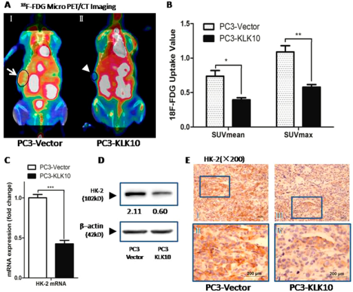 KLK10 gene inhibits the glucose metabolism of PC3 cells with the lower 18F-FDG uptake via the down-regulation of HK-2.(A: I, II) 18F-FDG micro PET/CT scan showed that the18F-FDG uptake of the transplanted tumour was lower in the PC3-KLK10 group (arrow head) than in the Vector group (arrow); in the images, hot spots of 18F-FDG could also be found in several organs such as the heart, liver, spleen, digestive and urinary system, but these hot spots did not disturb the imaging of the subcutaneous transplantation tumour. (B) Bar chart of 18F-FDG uptake semi-analysis showed that the uptake of 18F-FDG in KLK10-over-expressing PC3 transplantation tumour was low, with low SUVmean and SUVmax (0.39 ± 0.05 vs. 0.74 ± 0.16, 0.58 ± 0.07 vs. 1.09 ± 0.18; P < 0.05, P < 0.01). (C) The mRNA of HK-2 was much lower in the PC3-KLK10 cell line (P < 0.001) than in the control group. (D) WB showed that the HK-2 protein was significantly down-regulated in the PC3-KLK10 cell line. (E: I-IV) Low expression of the HK-2 protein in the PC3-KLK10 xenograft tumour tissue measured by IHC confirmed the result of WB.
