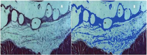 Evaluation of the inflammatory reaction. (A) Inflammatory tissue around the PP filaments (rounded blank areas-*)-HE/100x; (B) Blue marks represent inflammatory reaction after processing by Axiovision software™-HE/100x