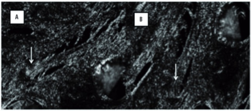 Evaluation of collagen fibers birefringence in polarization microscopy. (A) The collagen fibers bright on the dark background. (B) The same area after 45o rotation of the polarization microscope stage. White arrow indicates the same fiber package in opposite arrangement (200x).