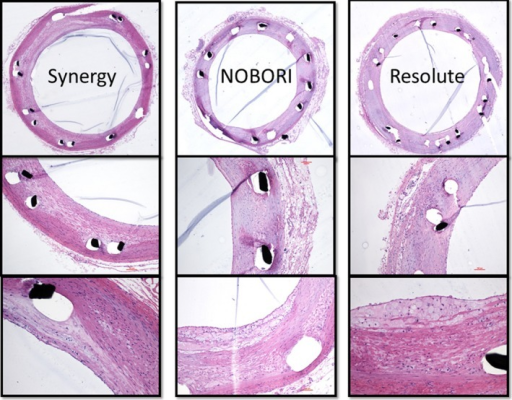 Representative histological images of 7 Synergy, 7 Nobori, and 6 Resolute Integrity stents harvested from animals euthanized at 90 days. All stent types were patent at euthanasia and showed various extents of inflammation and neoatherosclerosis.