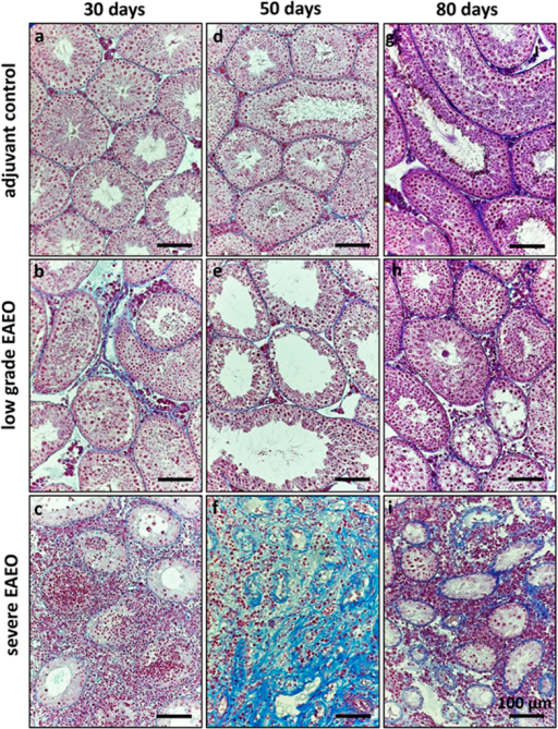 Azo-carmine and aniline blue staining of collagen fibres in paraffin sections from adjuvant control (a,d,g), low grade (b,e,h), and severe EAEO (c,f,i) mouse testes at 30 (a–c), 50 (d–f) and 80 (g–i) days after first immunisation. An increase in collagen fibres is visible in low grade EAEO in the areas with lymphocytic infiltrates. A strong peritubular fibrotic response is detectable in EAEO mouse testes at 50 (f) and 80 (i) days after the first immunisation. Scale bars represent 100 μm.